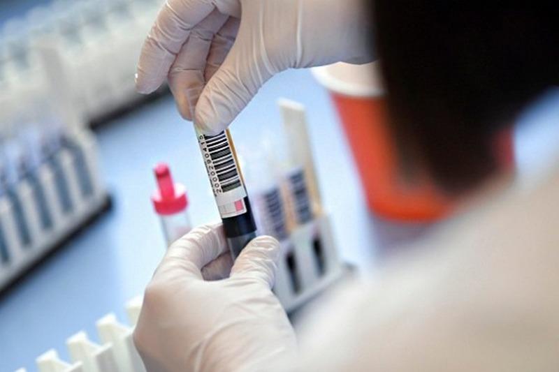 В Україні зафіксовано 836 нових випадків COVID-19