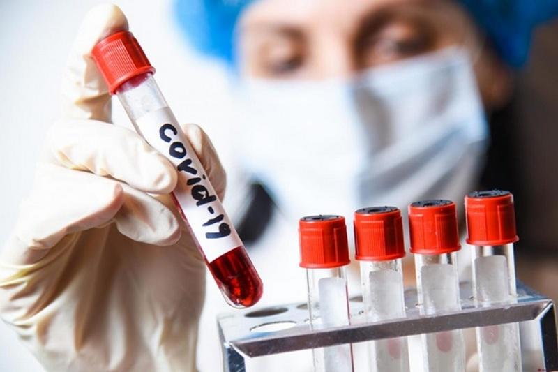 З початку карантину на Черкащині виявили 1039 випадків коронавірусу