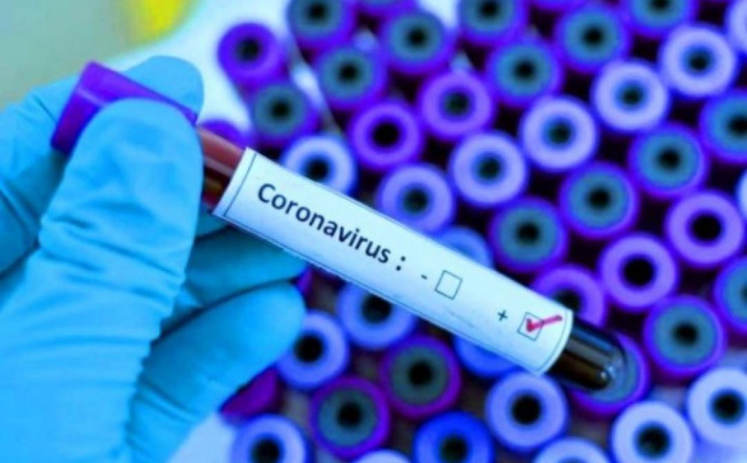 У Черкасах готуються до відкриття тимчасового госпіталю для хворих із Covid-19