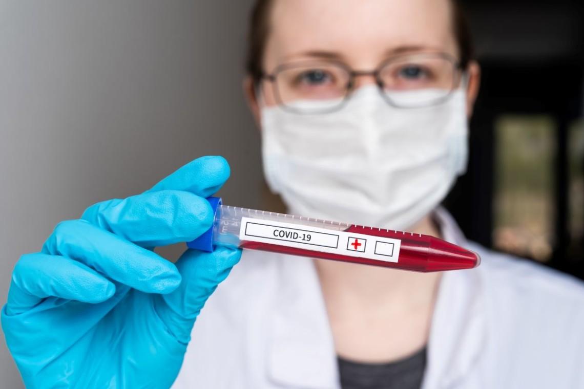 На Черкащині зафіксували 374 випадків інфікування коронавірусом