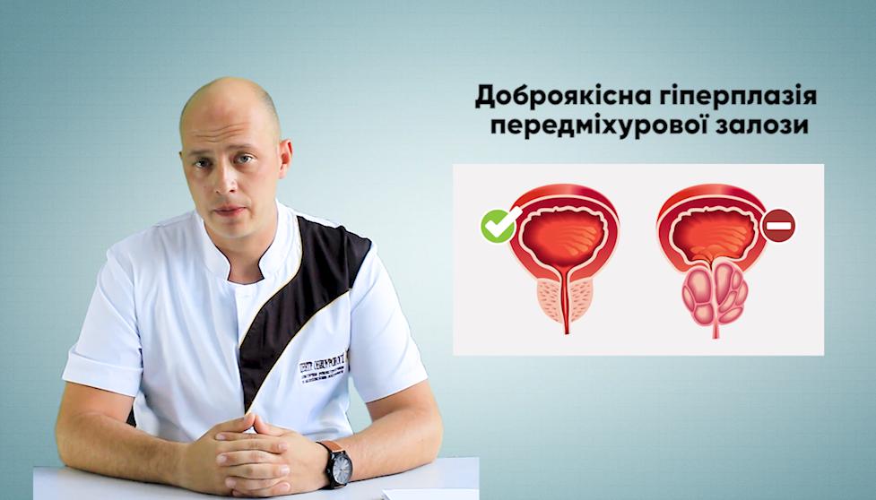 «З лікарем про актуальне»: доброякісна гіперплазія передміхурової залози (ВІДЕО)